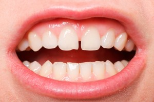 diastemas · separación de dientes