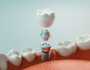 rechazo de un implante